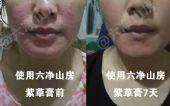 可以有效解决所有肌肤问题的神奇紫草膏!台湾王牌六净山房紫草膏