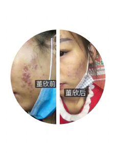 关于痘痘,你了解多少?董欣祛痘祛痘印,更精准更安全!图片