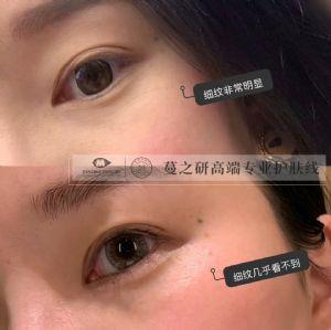 蔓之研眼膜20分钟矫正黑眼圈 眼袋 细纹 ,蔓之研全国招商代理